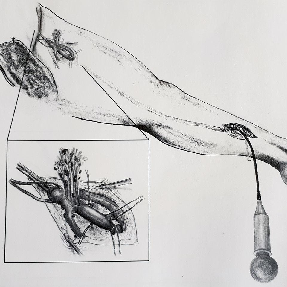 Operación de varices en Granada